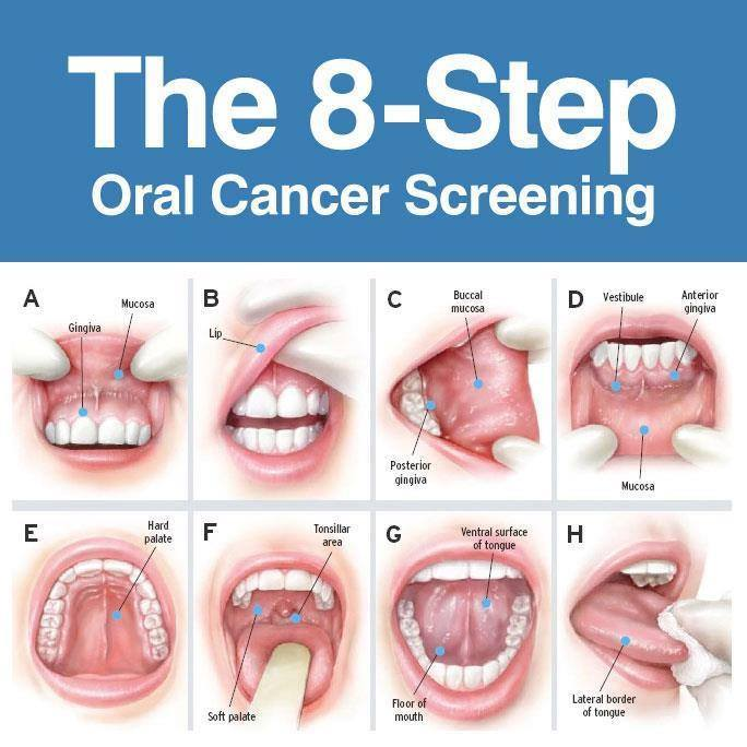 Catching Oral Cancer Early is Key to Survival – Roseman Dental
